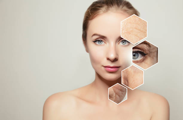 Anti- ageing treatment, best anti ageing treatment, wrinkles, Wrinkles treatment,